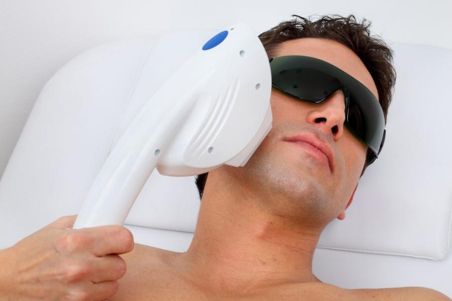 galeria Depilacja laserowa dla mężczyzn
